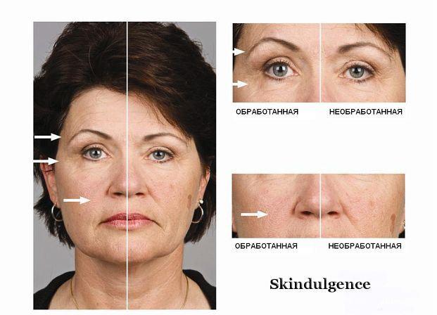 skindulgence-results